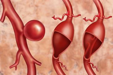 Лечение аневризмы аорты в Израиле