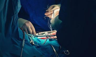 Открытая операция при аневризме аорты в Израиле